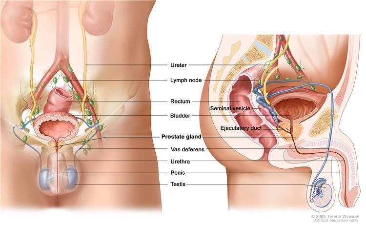 prosztatarák aktív felügyelete genitális szemölcsök a nőknél az ágyék területén
