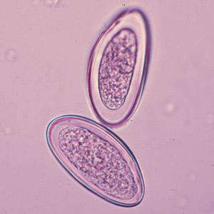 Emberi pinworm paraziták