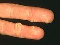 a szalagférgek és a pelyvák paraziták