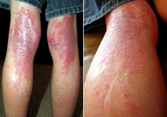 hpv bőrbetegségek