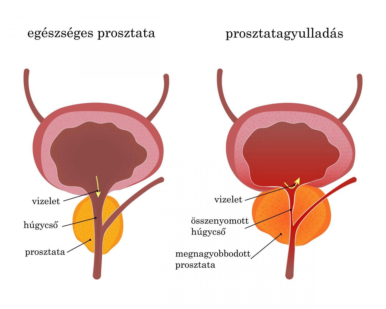 prosztatarák kezdeti tünetei)