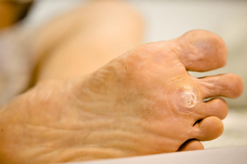 a kezeken lévő szemölcsök genetikai hpv vírus jo bizalom