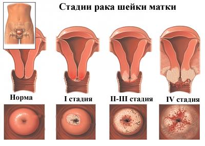 Műtét után papillomavírus