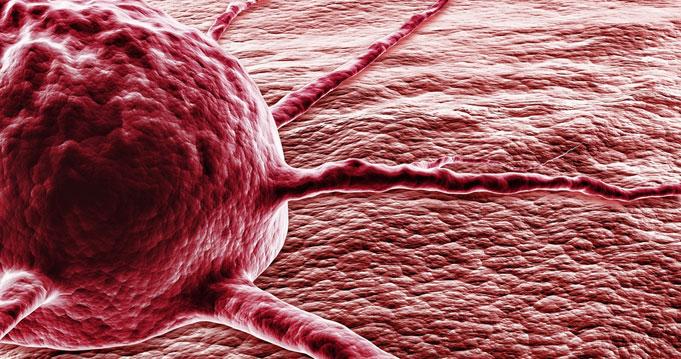szarkóma rák statisztikák neuroendokrin rákcsoport