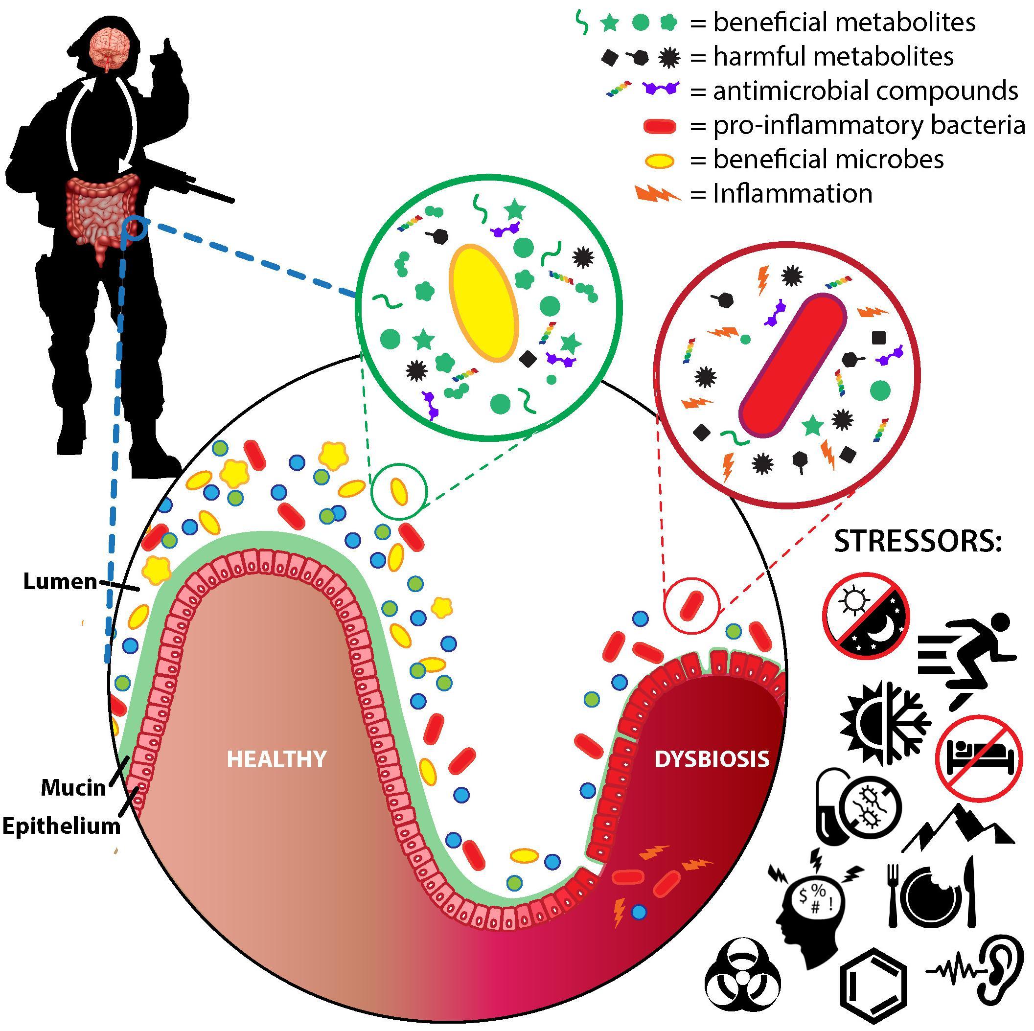 Milyen veszélyt jelent a dysbiosis? Gastroenterology
