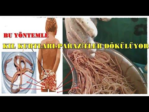 kil kurdu yumurtalari nasil olur intraductalis papilloma amerikai ráktársaság