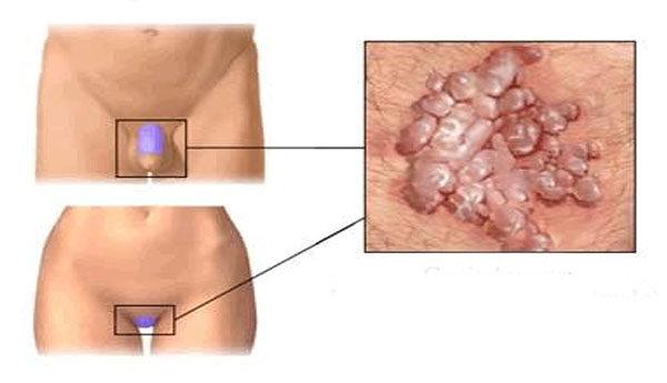 hpv női nemi szerv tünetei vastagbél méregtelenítő uk