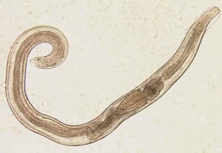 Az enterobiasis szedésének technikája, Az enterobiasis higiéniai intézkedései - Fereg bab