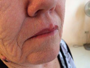 fibroma inga papilloma