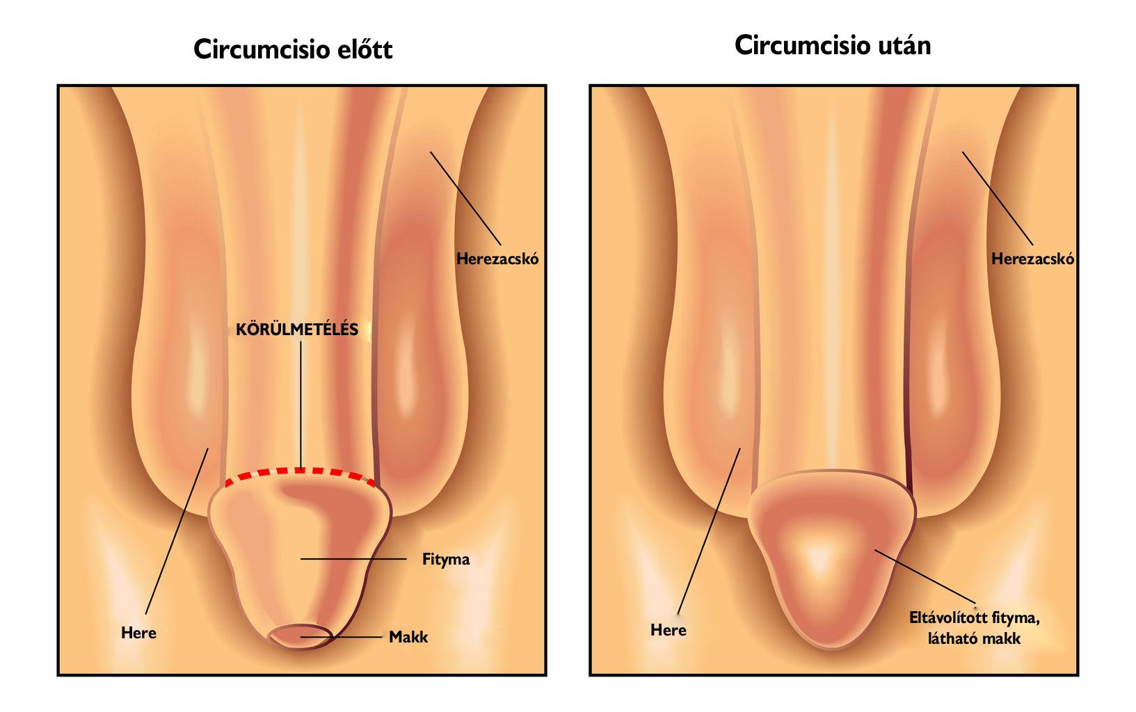 Rádióhullám a genitális szemölcsök eltávolítására. A genitális szemölcsök eltávolításának módszerei