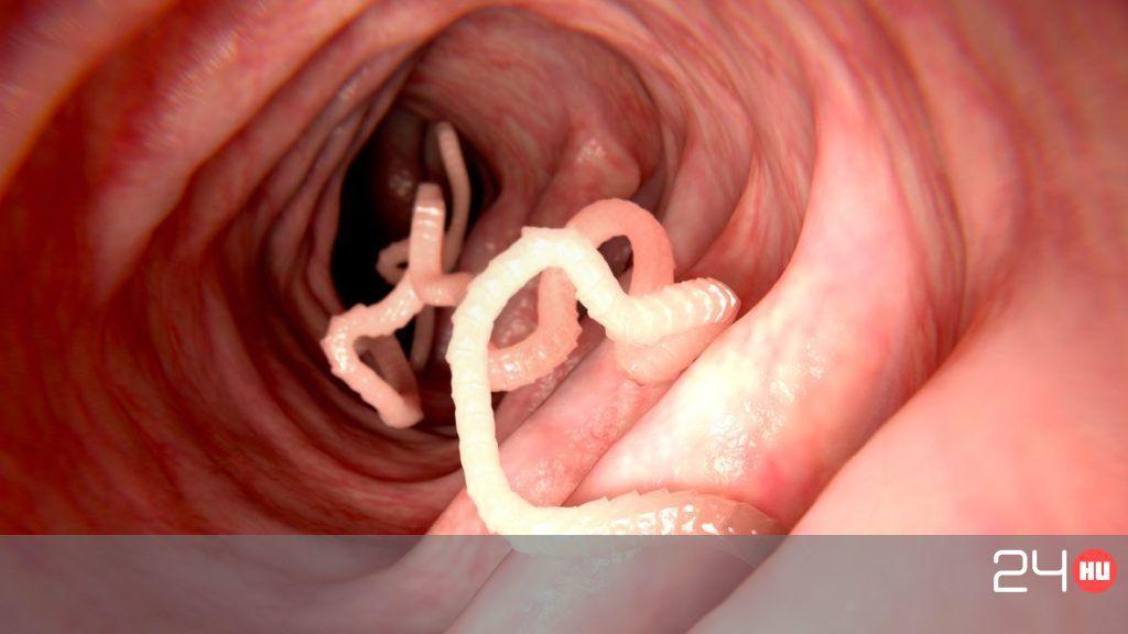 féregparazita az emberben
