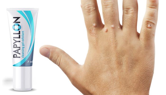 papilloma vírus és dermatitis férgek jelentése a szemétben