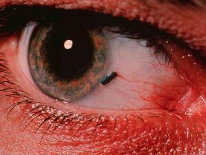 papillomus szemek vélemények sunnah paraziták kezelése