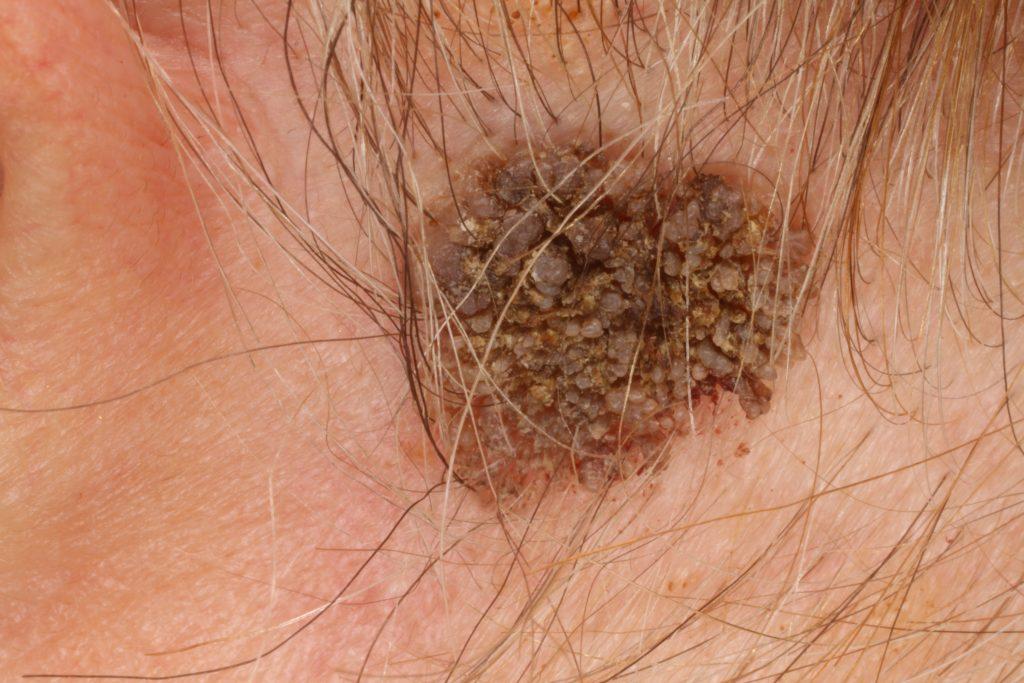 tapasz méregtelenítés helmint fertőzés jelei és tünetei