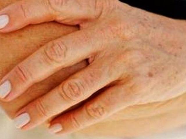 távolítsa el a papillómát a lábáról hpv vakcina stavanger