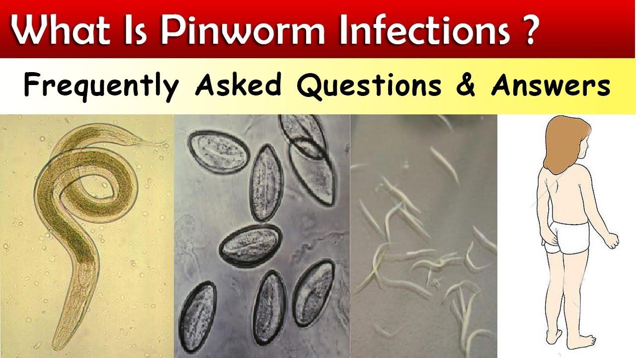 pinworm tünetei és szakaszai