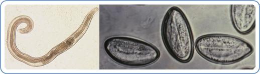 Enterobius vermicularis qurdu. Enterobius vermicularis selofan bant yontemi