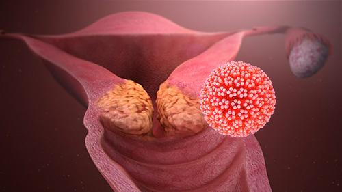 Infection a papillomavirus chez l homme. Mode de contamination du papillomavirus babă în latină