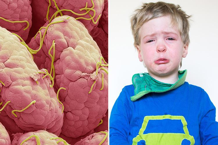 enterobiasis nhs condyloma fertőzött nőknél
