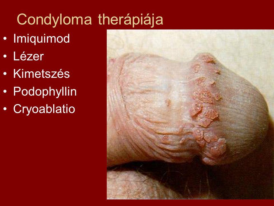 A húgycső condylomja. HPV fertőzés tünetei férfiak esetében