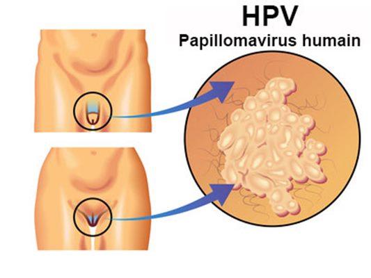 hosszú fehér férgek emberi papillomavírus fertőzéses kezelése