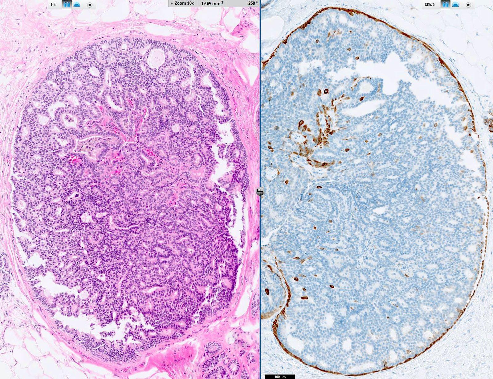 papilloma urotheliális patológia körvonalai)