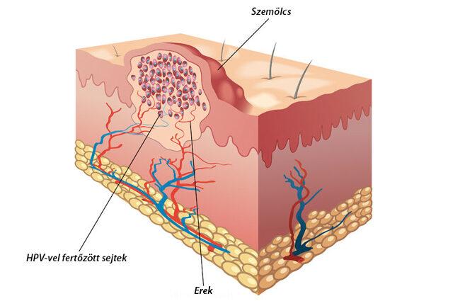 szemölcsök bőrnövekedés szemölcsök a húgycső nyálkahártyáján