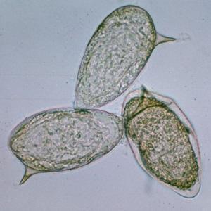 definiálja a schistosomiasis