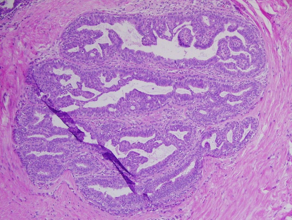 rajzfilm parazita fokhagyma méregtelenítő recept
