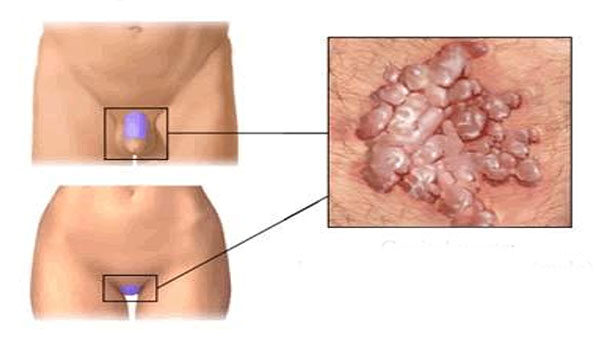 condyloma egy nő gyógyszeres kezelésében