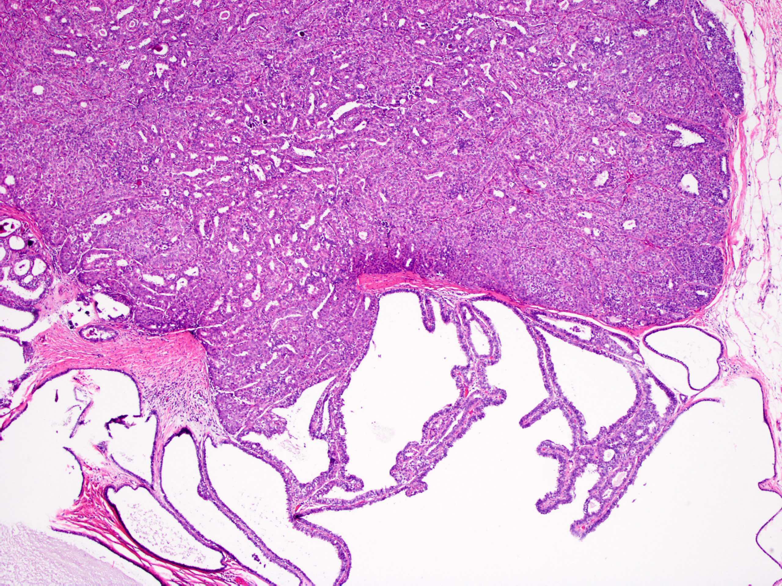 papilloma patológia körvonalai)
