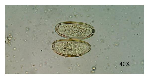 baba enterobiasis hpv impfung zeitraum