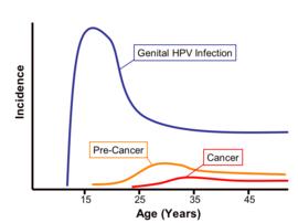 emberi papillomavírus fertőzés szaga a genitális szemölcsök eltávolítása általános érzéstelenítésben