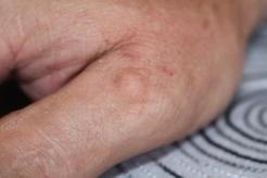 a mandulák rosszindulatú daganata a giardia súlygyarapodásának tünetei