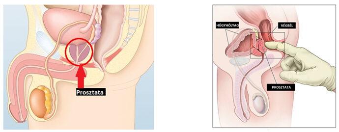 Krónikus prosztatitis kezelésére szolgáló kezelések Ez befolyásolja a fagyot