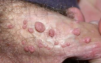 papilláris urothelialis hyperplasia hólyag icd 10)