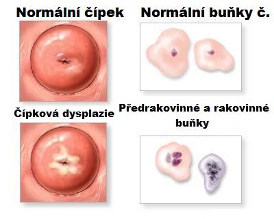 A papillómák komplex kezelése. A HPV (humán papillomavírus) fertőzés tünetei, kezelése