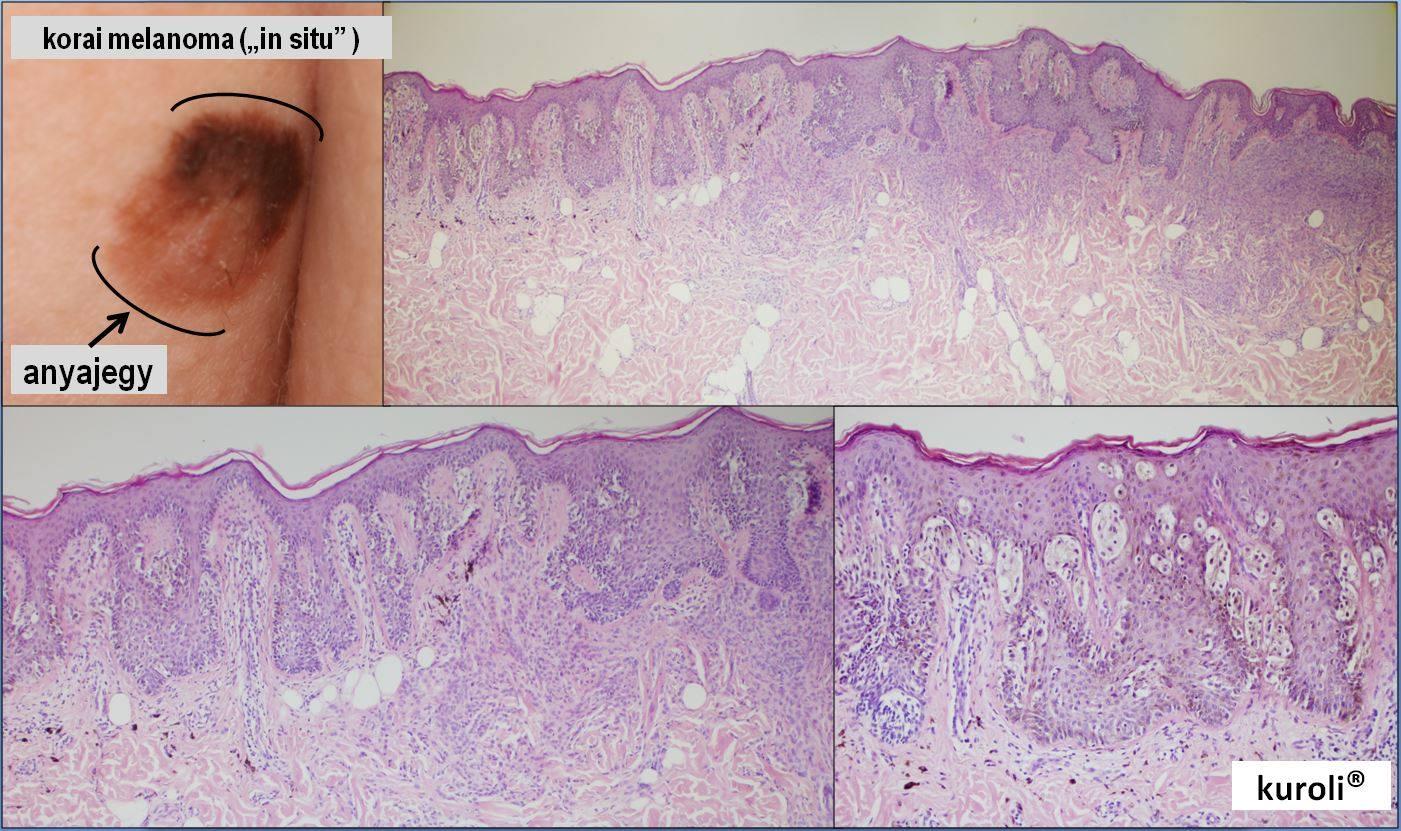amely az acanthosis papillomatosis)