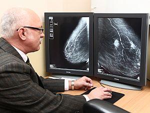 emlőmirigy rák tünetei egyenes megjelenés