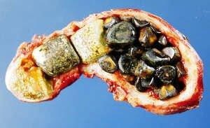 méregtelenítő epe keserű sóval a székletelemzés során talált helminták