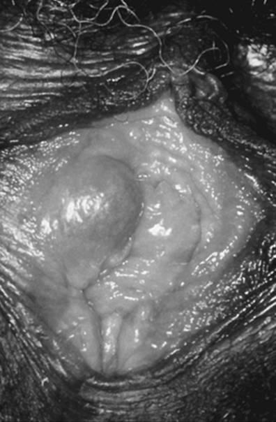 vestibularis papillomatosis diagnózis felnőttek parazitáinak kezelésére szolgáló gyógyszerek