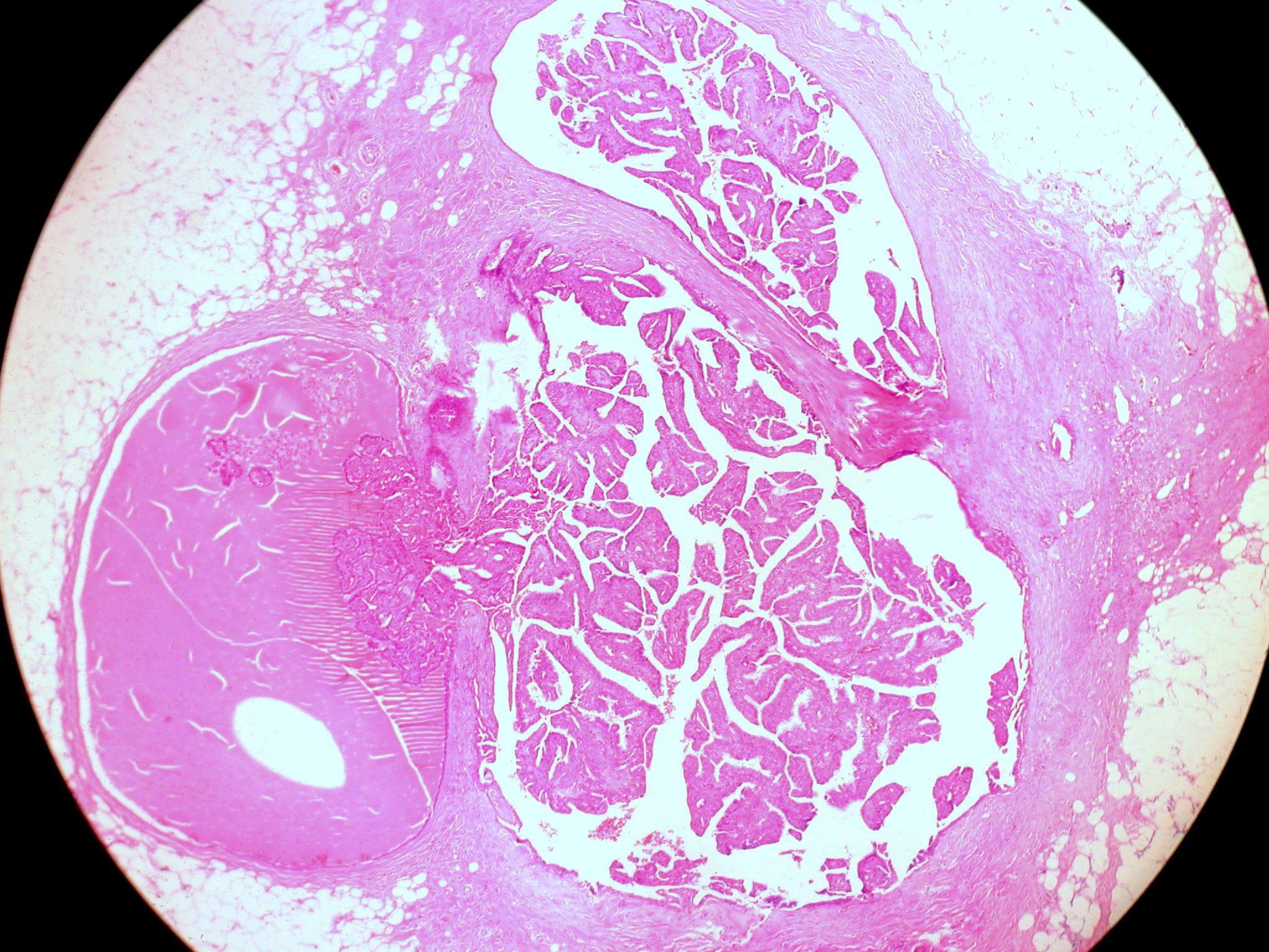 a ductalis papilloma veszélyes a gyermekkori toxoplazmózis inkubációs periódusa