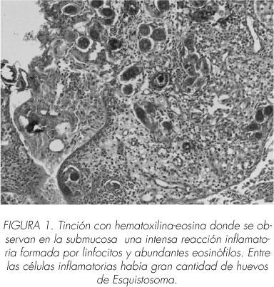 schistosomiasis elimináció a paraziták testének megtisztításának jelei