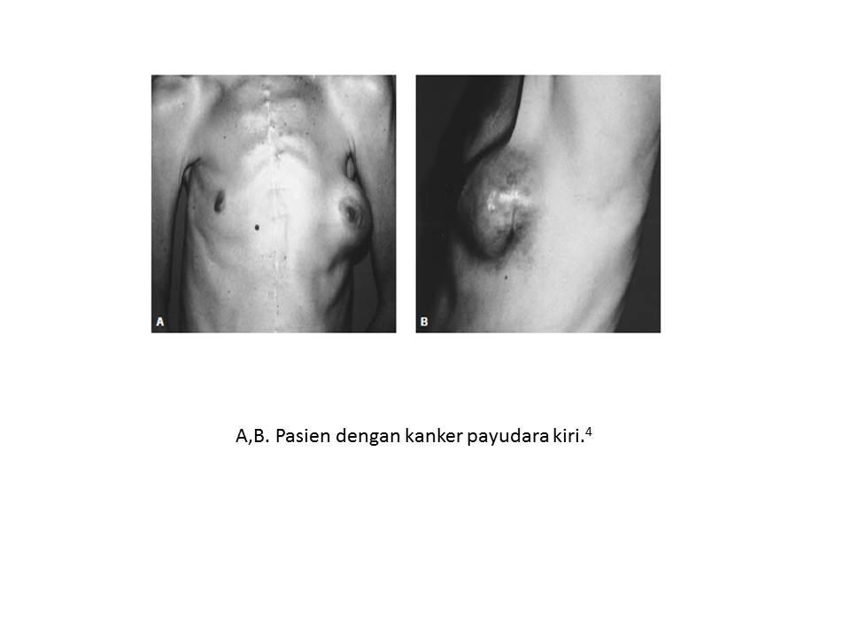 hogyan kell kezelni a talpi szemölcsöt egy gyermeknél keuchhusten toxinok