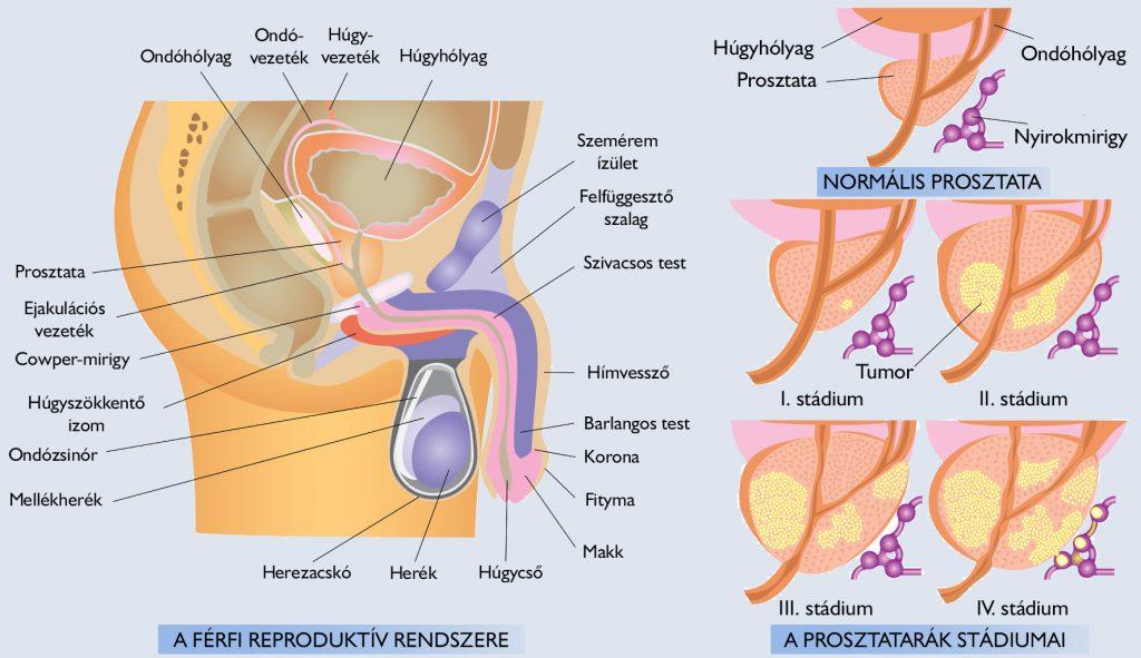 allergiás paraziták hogyan lehet gyorsan lenyomni a pinwormot