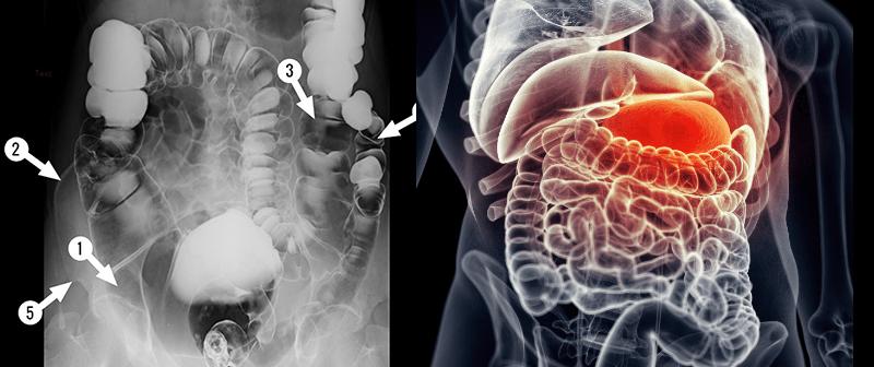 széklet színe giardiasissal cseppek a condyloma kezelésére