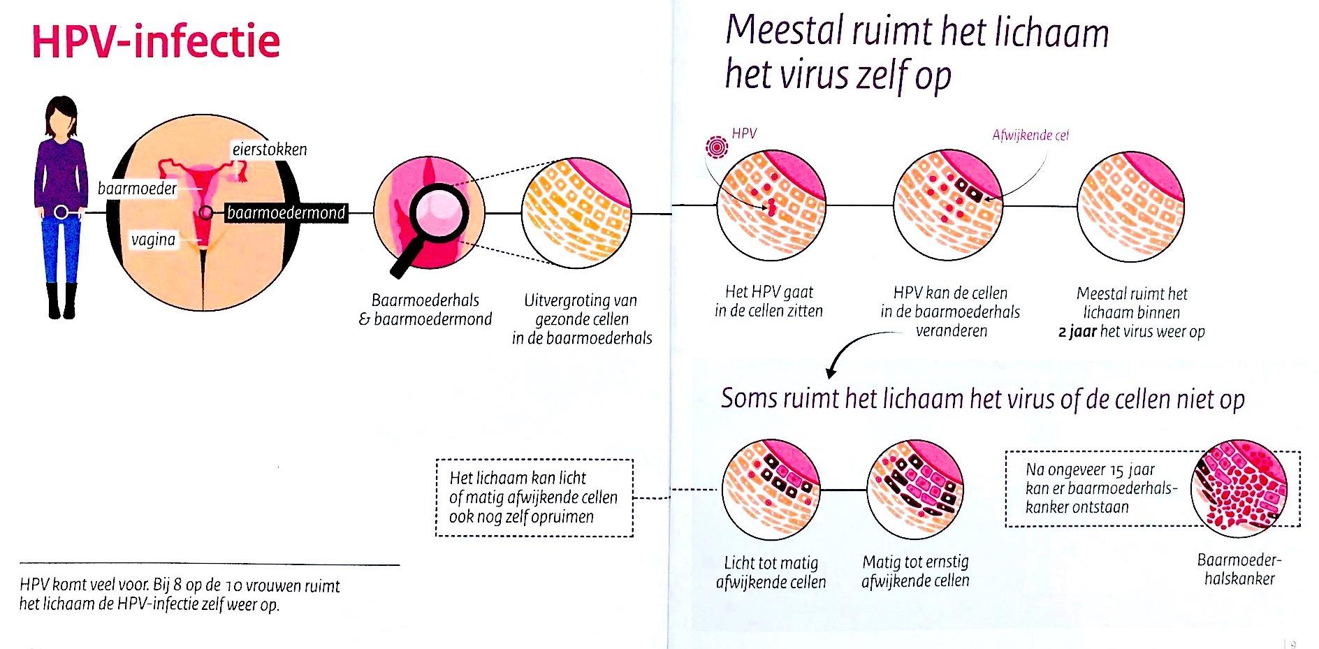 hpv vírus besmettelijk