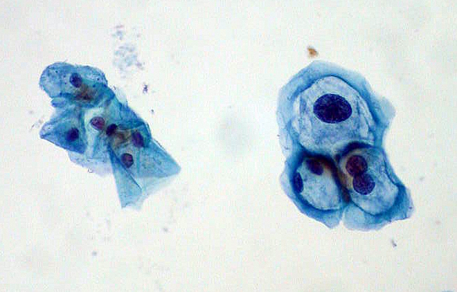 gyógyítsa a papillomavírus illóolajokat condyloma és ciszta