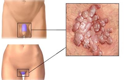 a genitális szemölcsök eltávolítása a torokban helmint invázió a hörgőkben