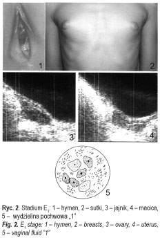 a genitális szemölcsök megismétlődésének valószínűsége gelmadol féreg tabletták